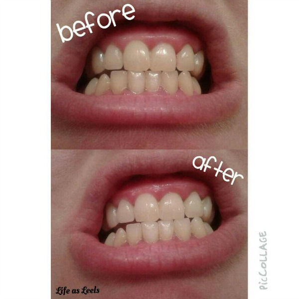 20 minutes teeth whitening session with Smile Brilliant
