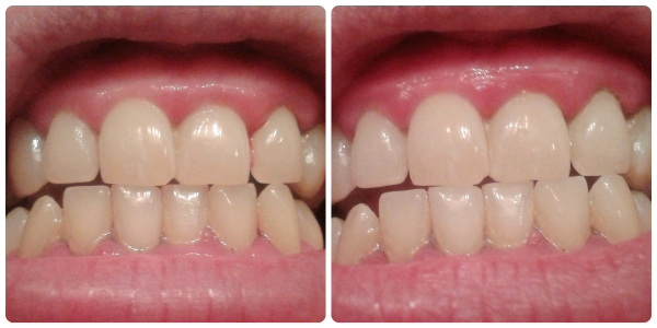 35 minute teeth whitening with Smile Brilliant